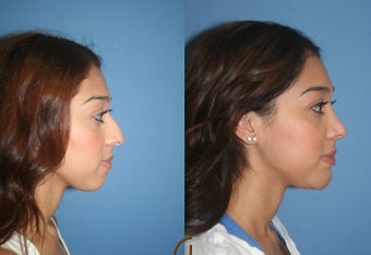 Ethnic Rhinoplasty after 418263