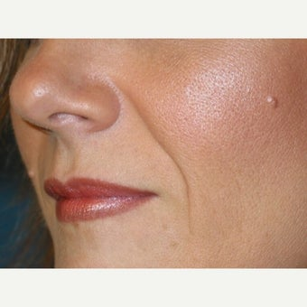 35-44 year old woman treated with Juvederm before 2368380