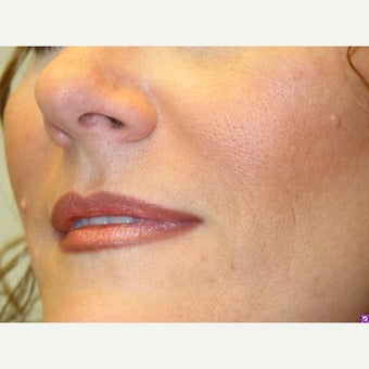 35-44 year old woman treated with Juvederm after 2368380