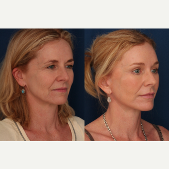 45-54 year old woman treated with Facelift after 3705875