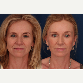 45-54 year old woman treated with Facelift before 3705875