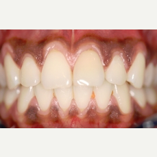 35-44 year old woman treated with gum bleaching