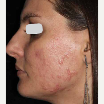 Woman treated with ResurFX before 1799253