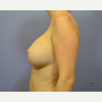 25-34 year old woman treated with Breast Augmentation after 3329370