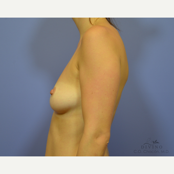 25-34 year old woman treated with Breast Augmentation before 3329370
