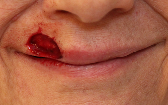 Complex Mohs Repair of the Lip