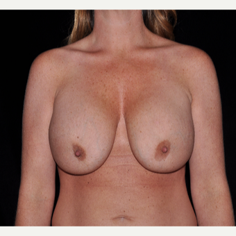 35-44 year old woman treated with Breast Augmentation before 3617901