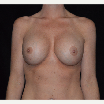35-44 year old woman treated with Breast Augmentation after 3617901