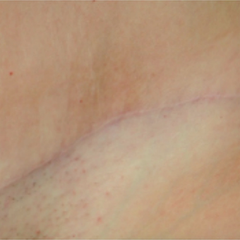 Tummy tuck scar before and after treatment with embrace® after 2864544