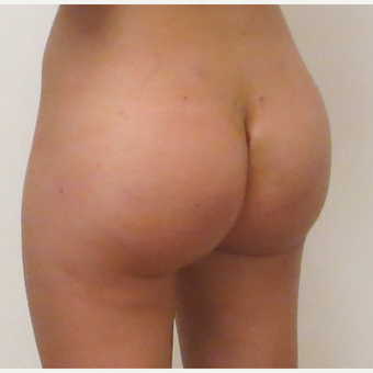 18-24 year old woman treated with Butt Implants after 3694974