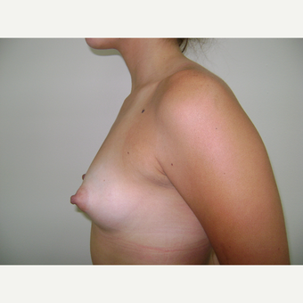 18-24 year old woman treated with Breast Augmentation before 3664043