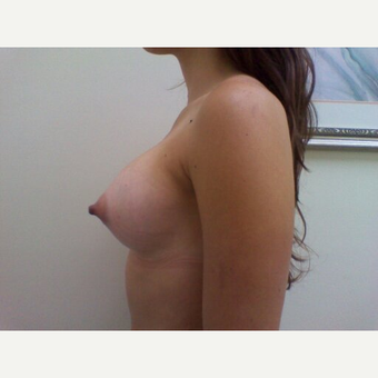 18-24 year old woman treated with Breast Augmentation after 3664043