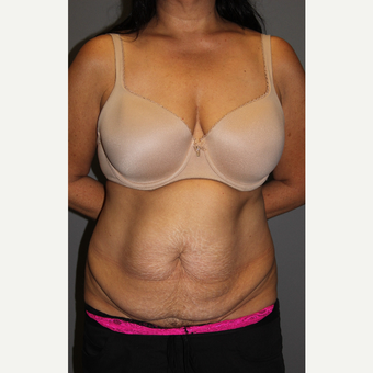 45-54 year old woman treated with Tummy Tuck before 3129271