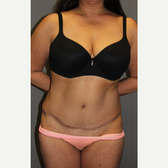 45-54 year old woman treated with Tummy Tuck after 3129271