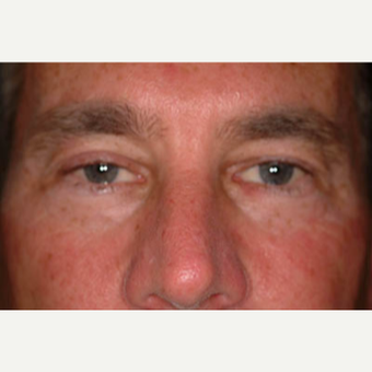 35-44 year old man treated with Eyelid Surgery before 3578232