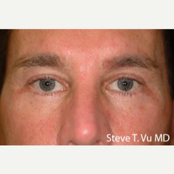 35-44 year old man treated with Eyelid Surgery after 3578232