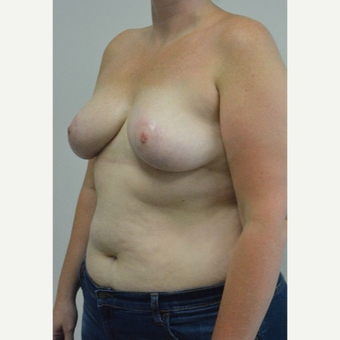 25-34 year old woman treated with Breast Reduction after 3141062