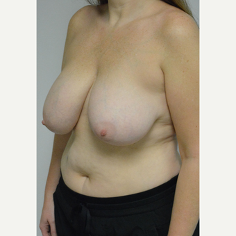 25-34 year old woman treated with Breast Reduction before 3141062