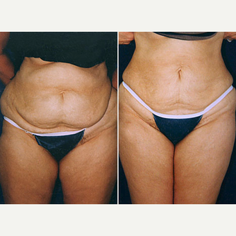 35-44 year old woman treated with Liposuction before 3032854