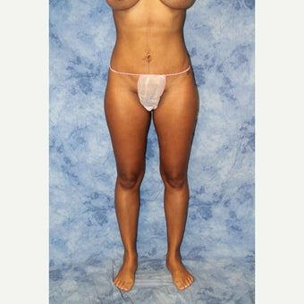 25-34 year old woman treated with Liposuction after 2247271
