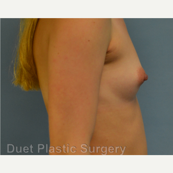 25-34 year old woman treated with Breast Augmentation before 3342192