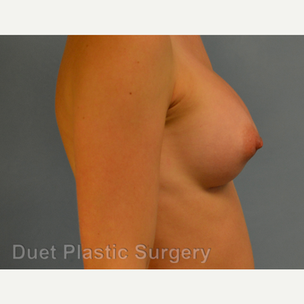 25-34 year old woman treated with Breast Augmentation after 3342192