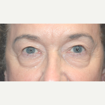 Eyelid Surgery before 3346387