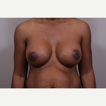35-44 year old woman treated with Breast Augmentation after 3768690