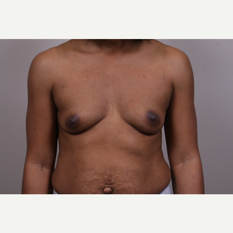 35-44 year old woman treated with Breast Augmentation before 3768690