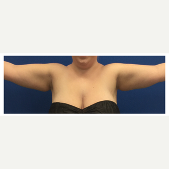 18-24 year old woman treated with Tumescent Liposuction of arms before 3495606