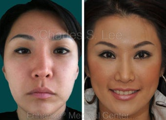 Blepharoplasty before 427694