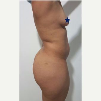 25-34 year old woman treated with tummy tuck before 3249606