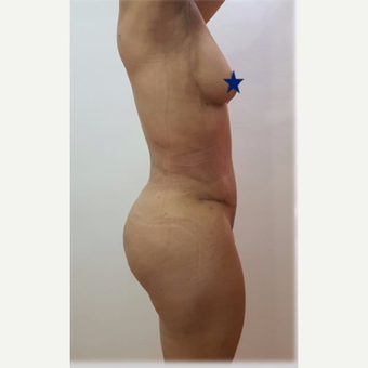 25-34 year old woman treated with tummy tuck after 3249606