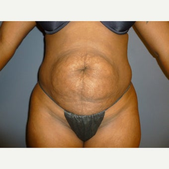 39 year old woman treated with Tummy Tuck, maintains her results one year post op before 1635887
