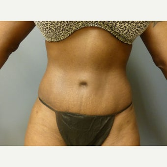 39 year old woman treated with Tummy Tuck, maintains her results one year post op after 1635887