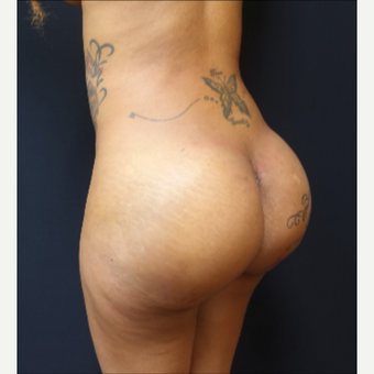 25-34 year old woman treated with 712cc Silicone Round Butt Implants after 3129121