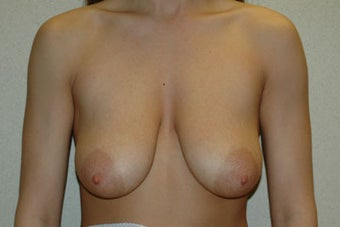 25 year old woman treated with breast lift and augmentation before 653325