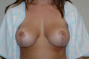 25 year old woman treated with breast lift and augmentation after 653325