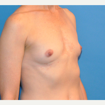 Breast Augmentation before 3783442