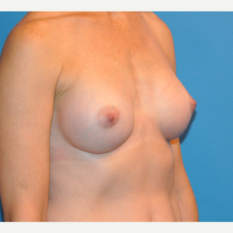 Breast Augmentation after 3783442
