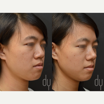 Asian Rhinoplasty with Rib cartilage before 3622595