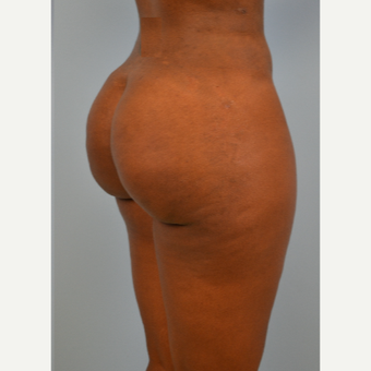 35 year old woman treated with Brazilian Butt Lift after 3432350