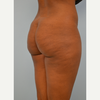35 year old woman treated with Brazilian Butt Lift before 3432350