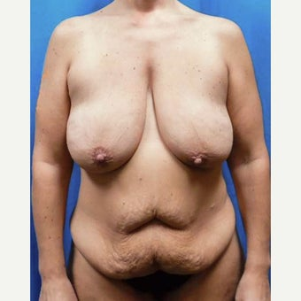35-44 year old woman treated with Mommy Makeover before 2674967