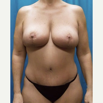 35-44 year old woman treated with Mommy Makeover after 2674967