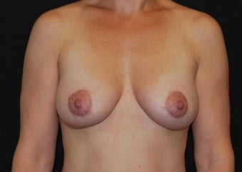Breast Lift after 949234