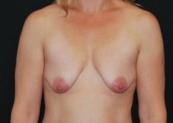 Breast Lift before 949234