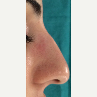 25-34 year old woman treated with Rhinoplasty before 3826174