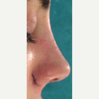 25-34 year old woman treated with Rhinoplasty after 3826174