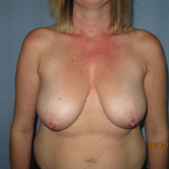 35-44 year old woman treated with Breast Lift with Implants before 3392304